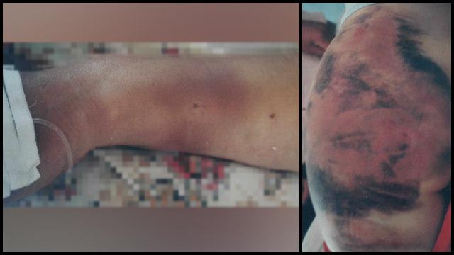 Li Yi è stata picchiata con violenza